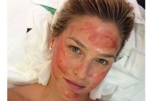 bar-refaeli-after-vampire-facial