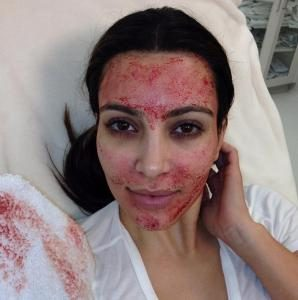 kim-kardashian-west-after-vampire-facial