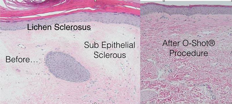 7c3-vampire-o-shot-histology-lichen-sclerosus