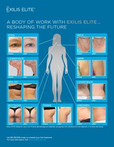 exilis-elite-preview